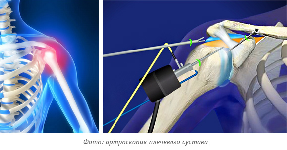 фото артроскопия плечевого сустава
