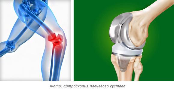 Эндопротезирование суставов фото пример
