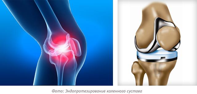 фото эндопротезирование коленного сустава