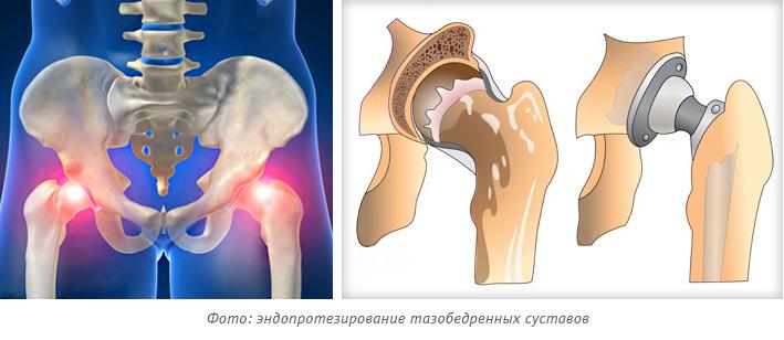 Фото: эндопротезирование тазобедренных суставов