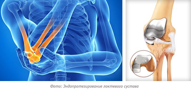 Фото: Эндопротезирование локтевого сустава