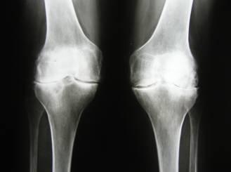 Рентген коленного сустава в киеве сколько нахоиться в гипсе с переломом коленого сустава